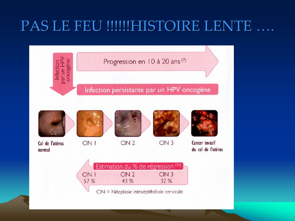 PAS LE FEU !!!!!!HISTOIRE LENTE ….