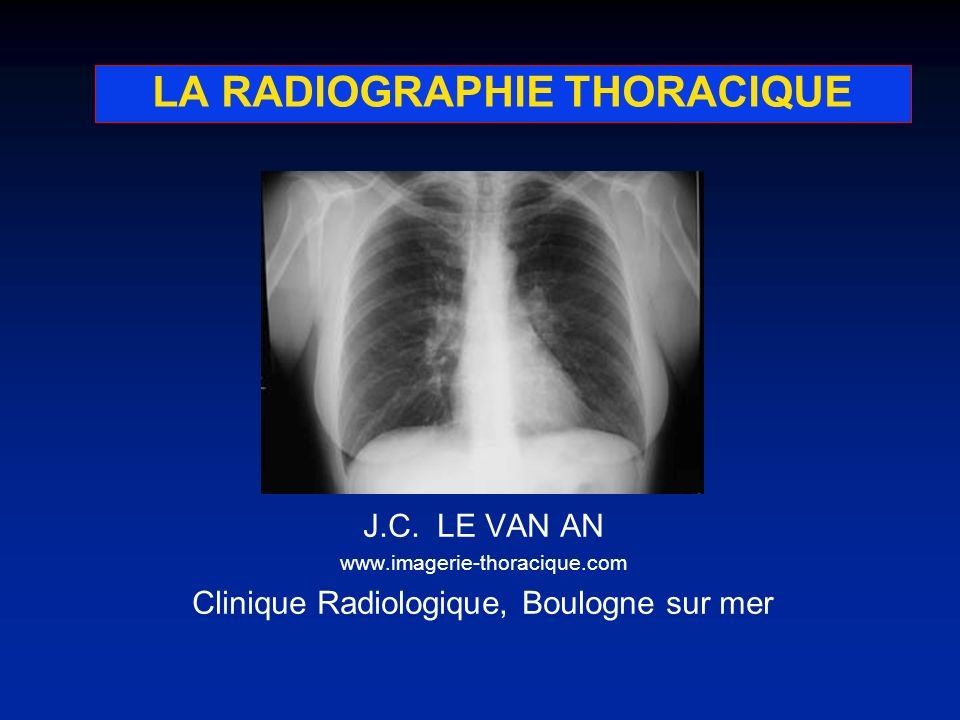 LA RADIOGRAPHIE THORACIQUE J.C. LE VAN AN www.imagerie-thoracique.com Clinique Radiologique, Boulogne sur mer