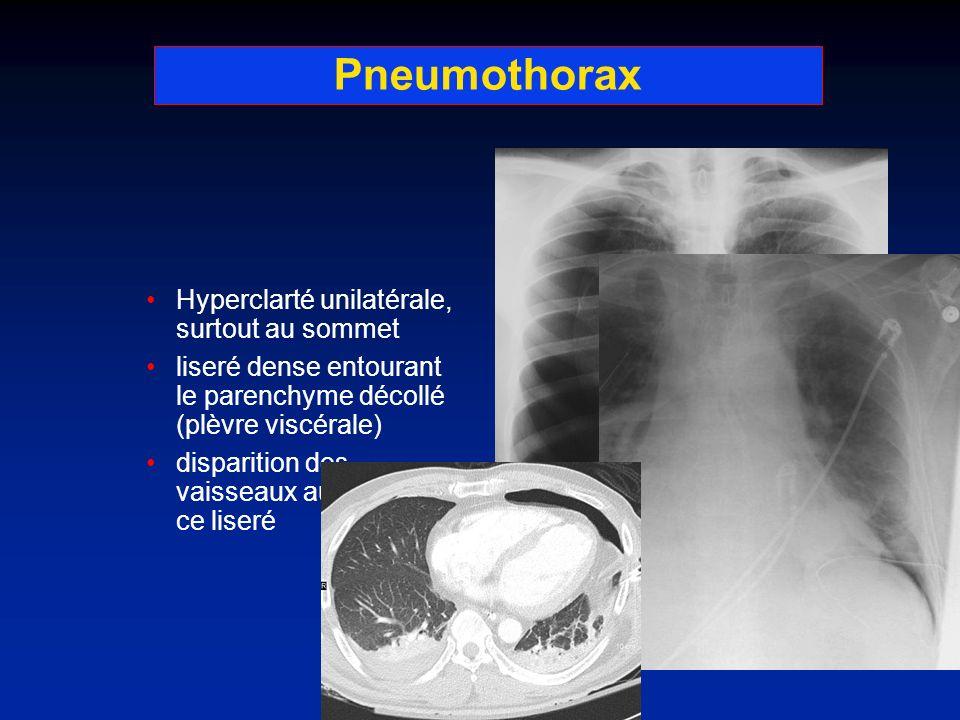 Pneumothorax Hyperclarté unilatérale, surtout au sommet liseré dense entourant le parenchyme décollé (plèvre viscérale) disparition des vaisseaux au d