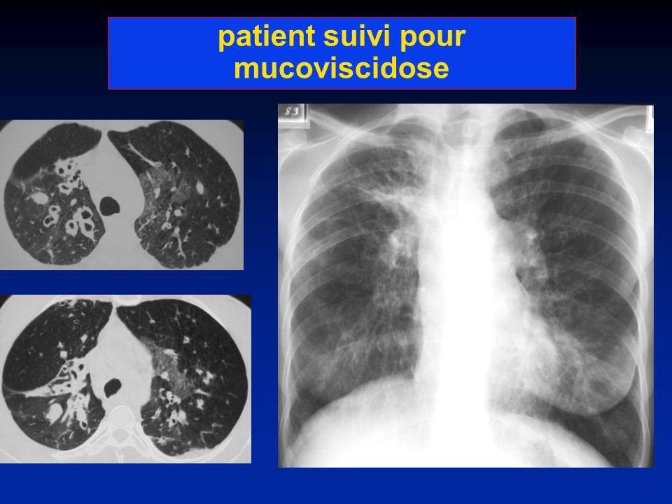 patient suivi pour mucoviscidose