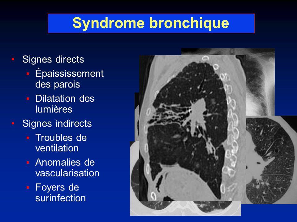 Syndrome bronchique Signes directs Épaississement des parois Dilatation des lumières Signes indirects Troubles de ventilation Anomalies de vascularisa