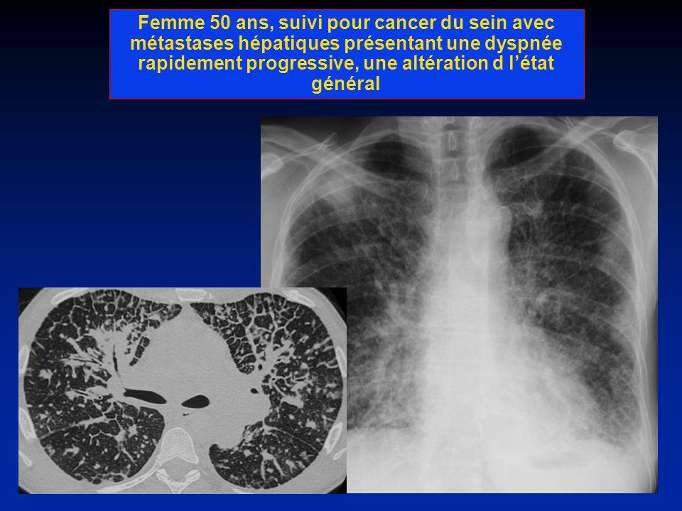 Femme 50 ans, suivi pour cancer du sein avec métastases hépatiques présentant une dyspnée rapidement progressive, une altération d létat général