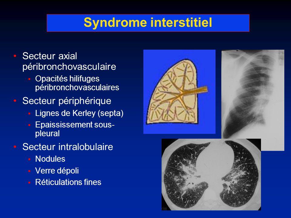 Syndrome interstitiel Secteur axial péribronchovasculaire Opacités hilifuges péribronchovasculaires Secteur périphérique Lignes de Kerley (septa) Epai
