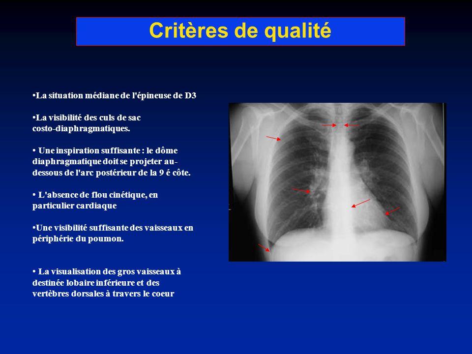 Critères de qualité La situation médiane de l'épineuse de D3 La visibilité des culs de sac costo-diaphragmatiques. Une inspiration suffisante : le dôm