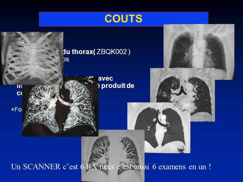 COUTS Radiographie du thorax( ZBQK002 ) 21,28 euros Scanographie du thorax, avec injection intraveineuse de produit de contraste (ZBQH001 ) 25,27 +For