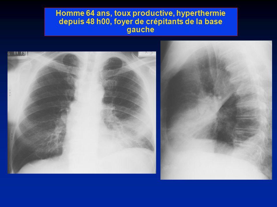 Homme 74 ans,ATC dIDM, dyspnée aigue, avec orthopnée, grésillement laryngée, crépitants bilatéraux à lauscultation.