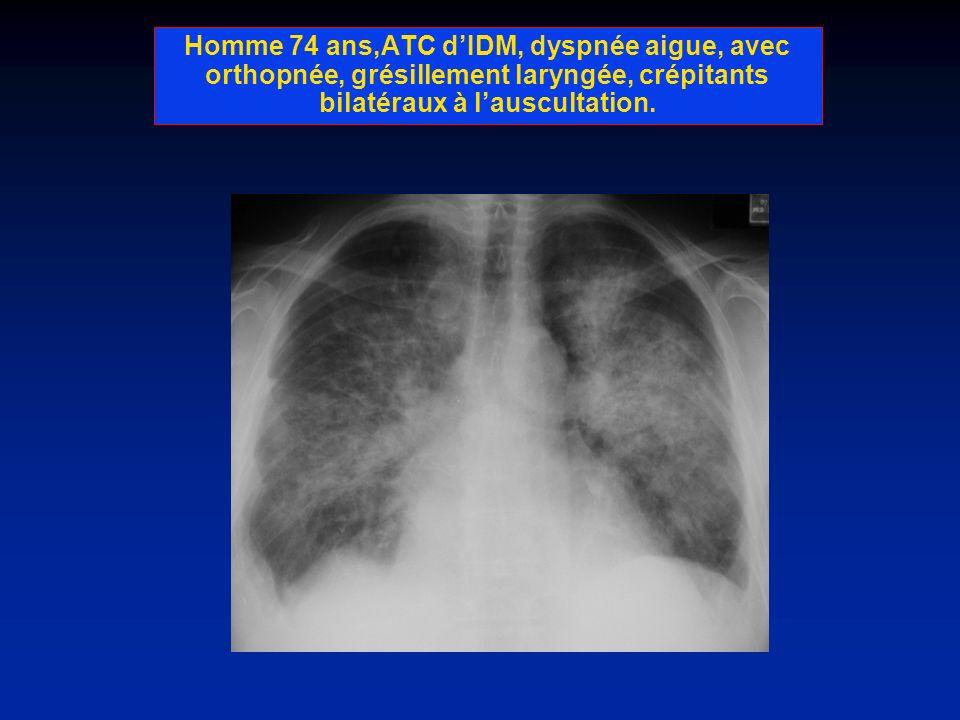 Homme 72 ans, tabagique,dyspnée progressive, toux persistante avec bronchorhée, altération de létat generale, radiographie de contrôle à 3 mois apres TT ATB