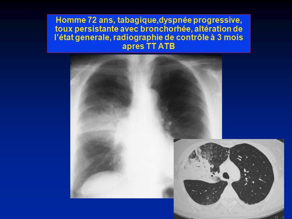 Homme 72 ans, tabagique,dyspnée progressive, toux persistante avec bronchorhée, altération de létat generale, radiographie de contrôle à 3 mois apres