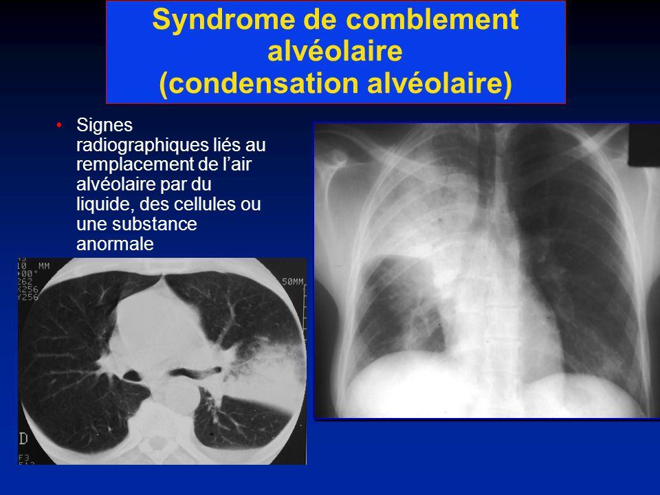 Syndrome de comblement alvéolaire (condensation alvéolaire) Signes radiographiques liés au remplacement de lair alvéolaire par du liquide, des cellule