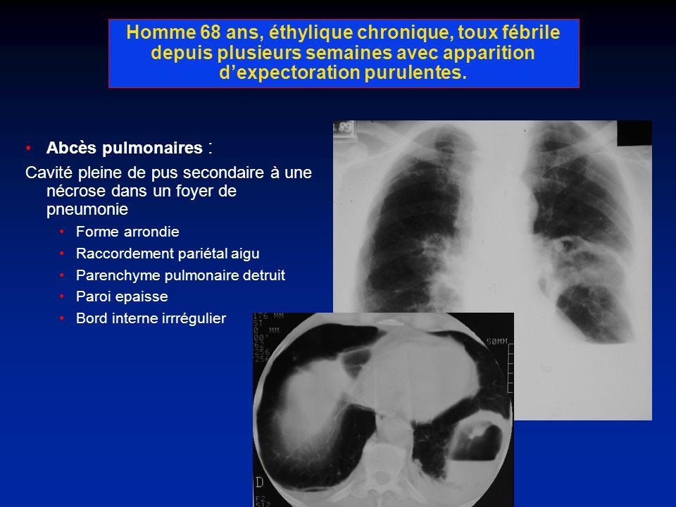 Homme 68 ans, éthylique chronique, toux fébrile depuis plusieurs semaines avec apparition dexpectoration purulentes. Abcès pulmonaires : Cavité pleine