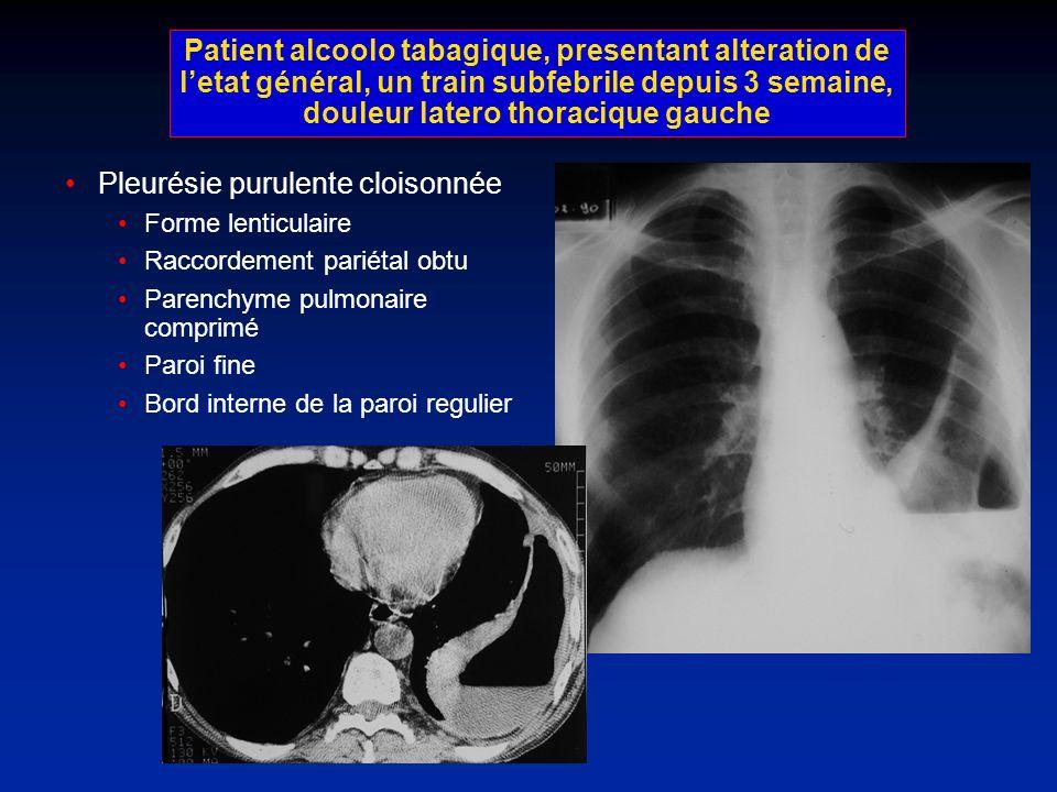 Patient alcoolo tabagique, presentant alteration de letat général, un train subfebrile depuis 3 semaine, douleur latero thoracique gauche Pleurésie pu