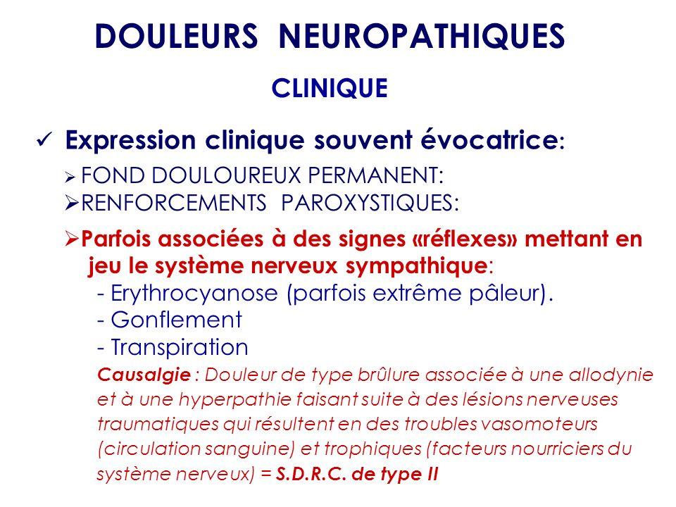 FOND DOULOUREUX PERMANENT: RENFORCEMENTS PAROXYSTIQUES: Parfois associées à des signes «réflexes» mettant en jeu le système nerveux sympathique : - Er