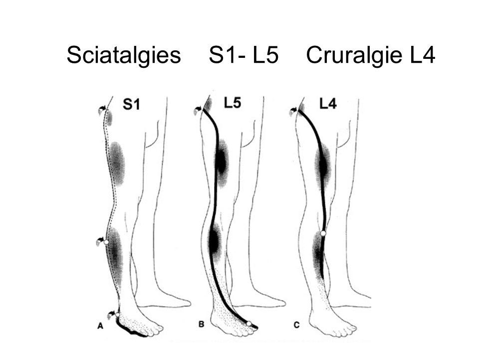 Sciatalgies S1- L5 Cruralgie L4