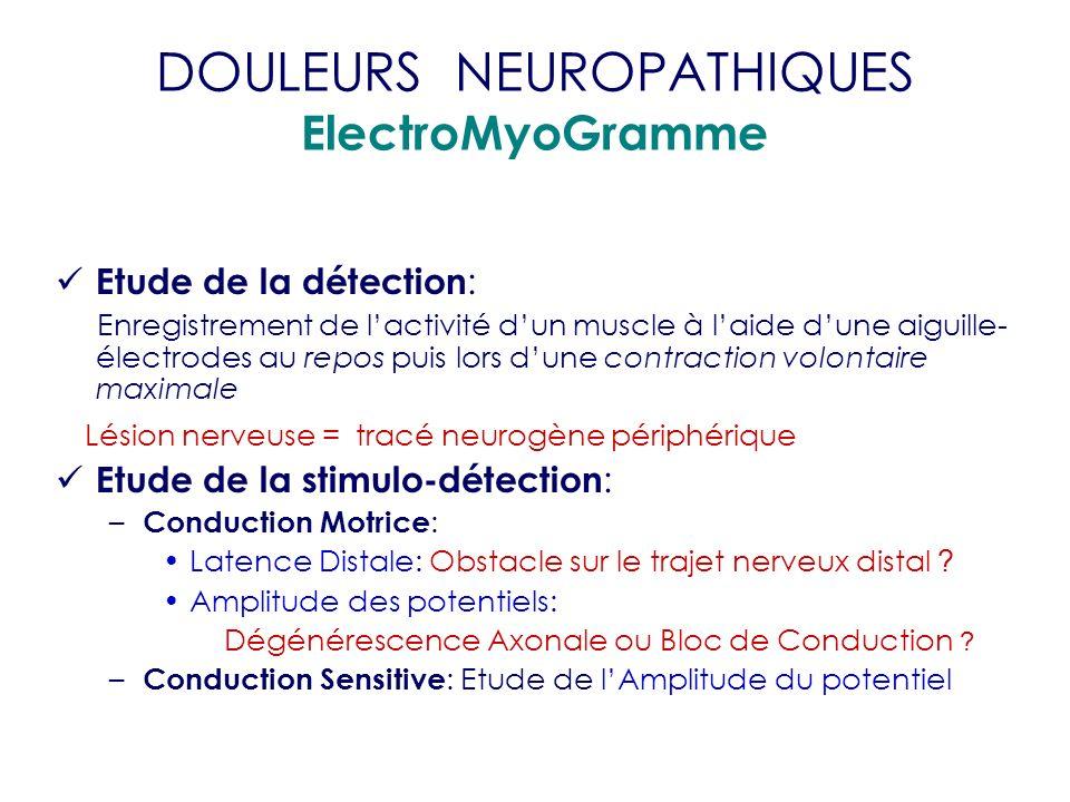 DOULEURS NEUROPATHIQUES ElectroMyoGramme Etude de la détection : Enregistrement de lactivité dun muscle à laide dune aiguille- électrodes au repos pui