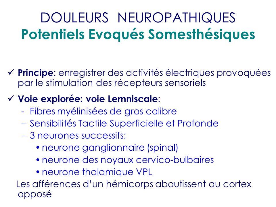 DOULEURS NEUROPATHIQUES Potentiels Evoqués Somesthésiques Principe : enregistrer des activités électriques provoquées par le stimulation des récepteur