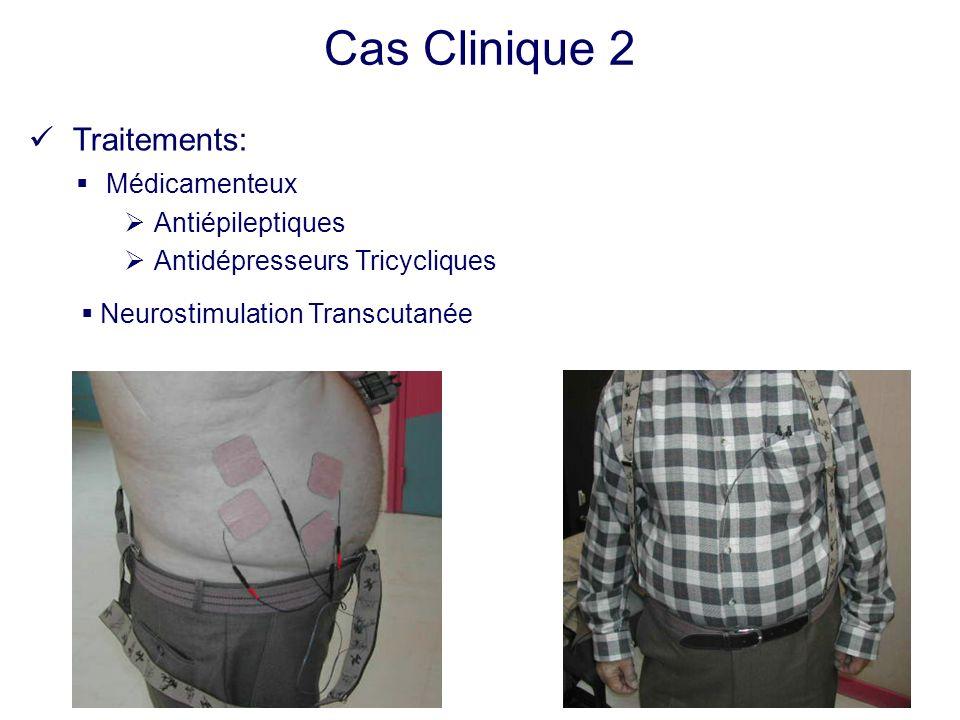 Traitements: Médicamenteux Antiépileptiques Antidépresseurs Tricycliques Neurostimulation Transcutanée Cas Clinique 2