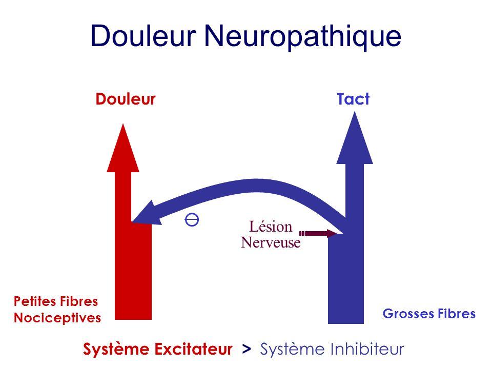 Douleur Neuropathique Douleur Petites Fibres Nociceptives Tact Grosses Fibres Système Excitateur > Système Inhibiteur Lésion Nerveuse