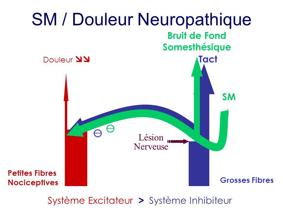 Petites Fibres Nociceptives Tact Grosses Fibres Système Excitateur > Système Inhibiteur SM SM / Douleur Neuropathique Bruit de Fond Somesthésique Lési