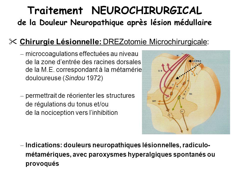 Traitement NEUROCHIRURGICAL de la Douleur Neuropathique après lésion médullaire Chirurgie Lésionnelle: DREZotomie Microchirurgicale: microcoagulations