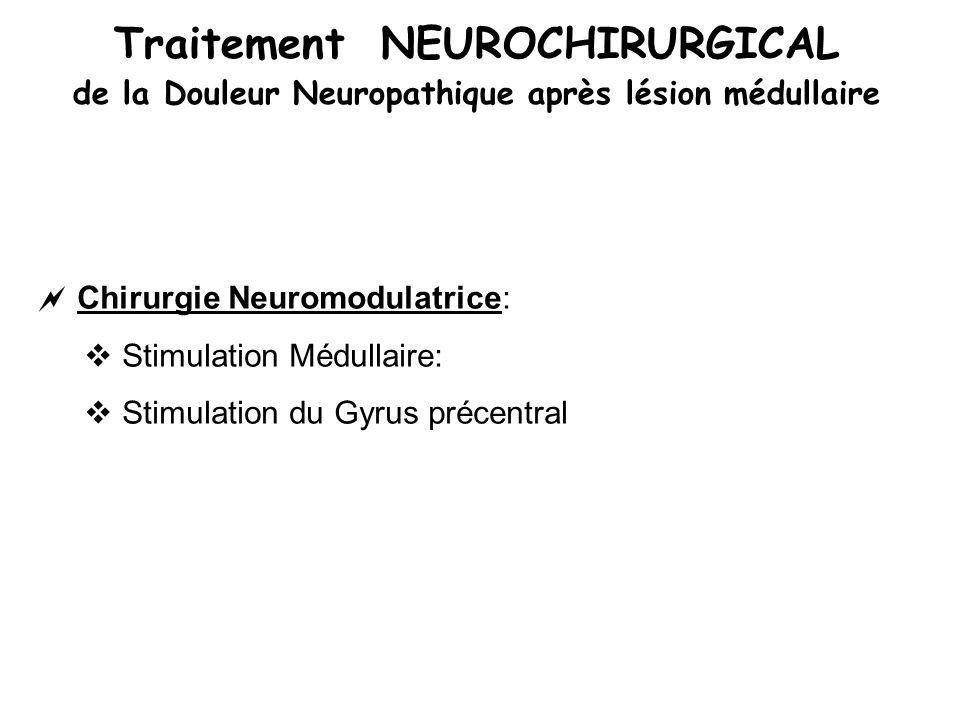 Traitement NEUROCHIRURGICAL de la Douleur Neuropathique après lésion médullaire Chirurgie Neuromodulatrice: Stimulation Médullaire: Stimulation du Gyr