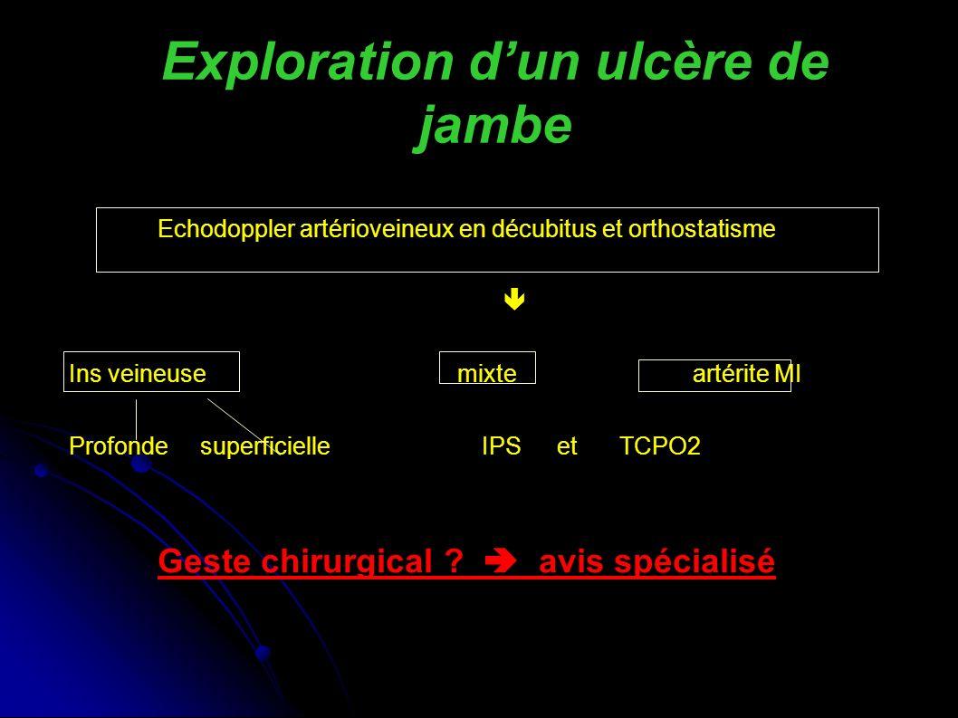 Exploration dun ulcère de jambe Echodoppler artérioveineux en décubitus et orthostatisme Ins veineuse mixte artérite MI Profonde superficielleIPS etTCPO2 Geste chirurgical .