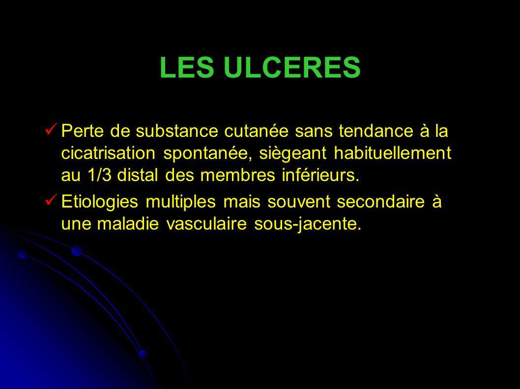 LES ULCERES Perte de substance cutanée sans tendance à la cicatrisation spontanée, siègeant habituellement au 1/3 distal des membres inférieurs.