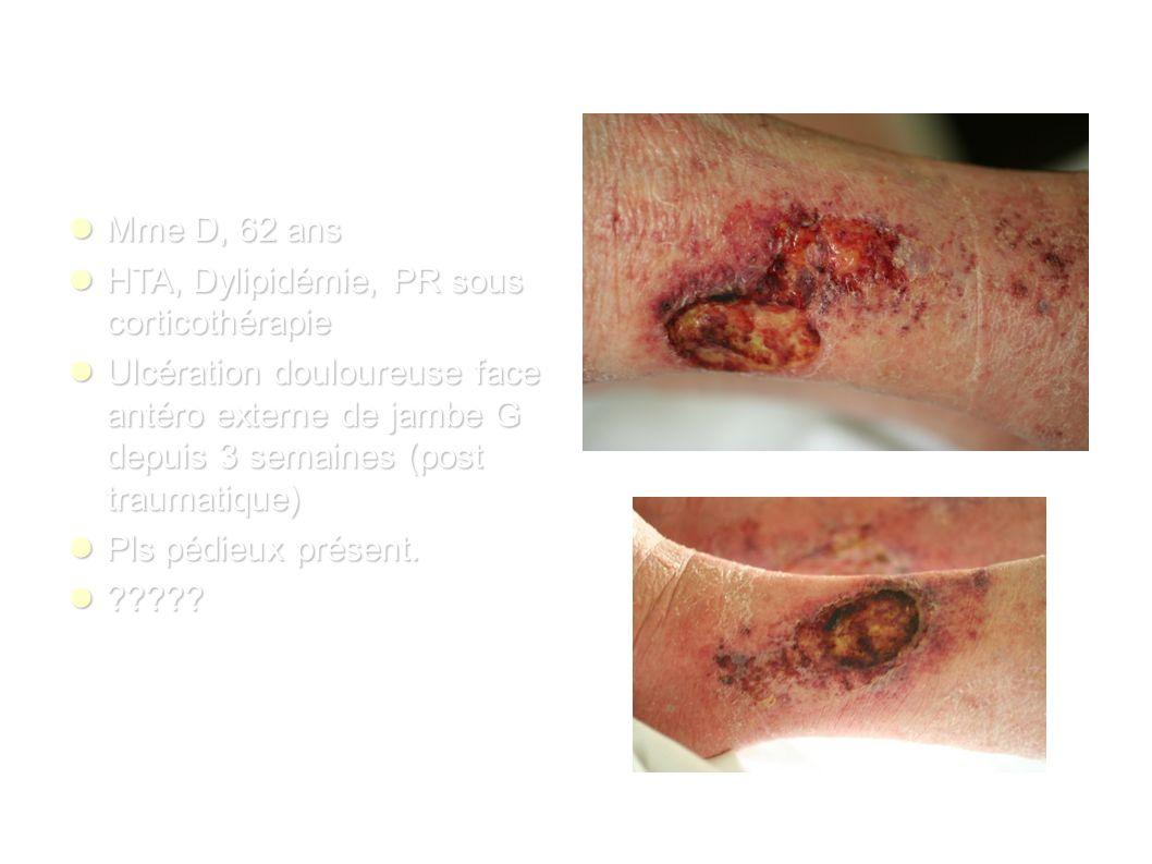 Mme D, 62 ans Mme D, 62 ans HTA, Dylipidémie, PR sous corticothérapie HTA, Dylipidémie, PR sous corticothérapie Ulcération douloureuse face antéro externe de jambe G depuis 3 semaines (post traumatique) Ulcération douloureuse face antéro externe de jambe G depuis 3 semaines (post traumatique) Pls pédieux présent.