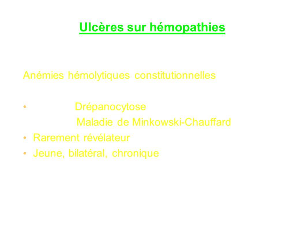 Ulcères sur hémopathies Anémies hémolytiques constitutionnelles Drépanocytose Maladie de Minkowski-Chauffard Rarement révélateur Jeune, bilatéral, chronique