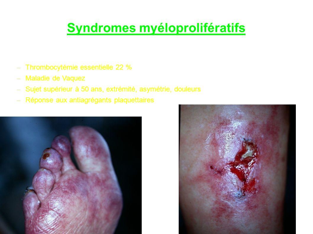 Syndromes myéloprolifératifs – Thrombocytémie essentielle 22 % – Maladie de Vaquez – Sujet supérieur à 50 ans, extrémité, asymétrie, douleurs – Réponse aux antiagrégants plaquettaires