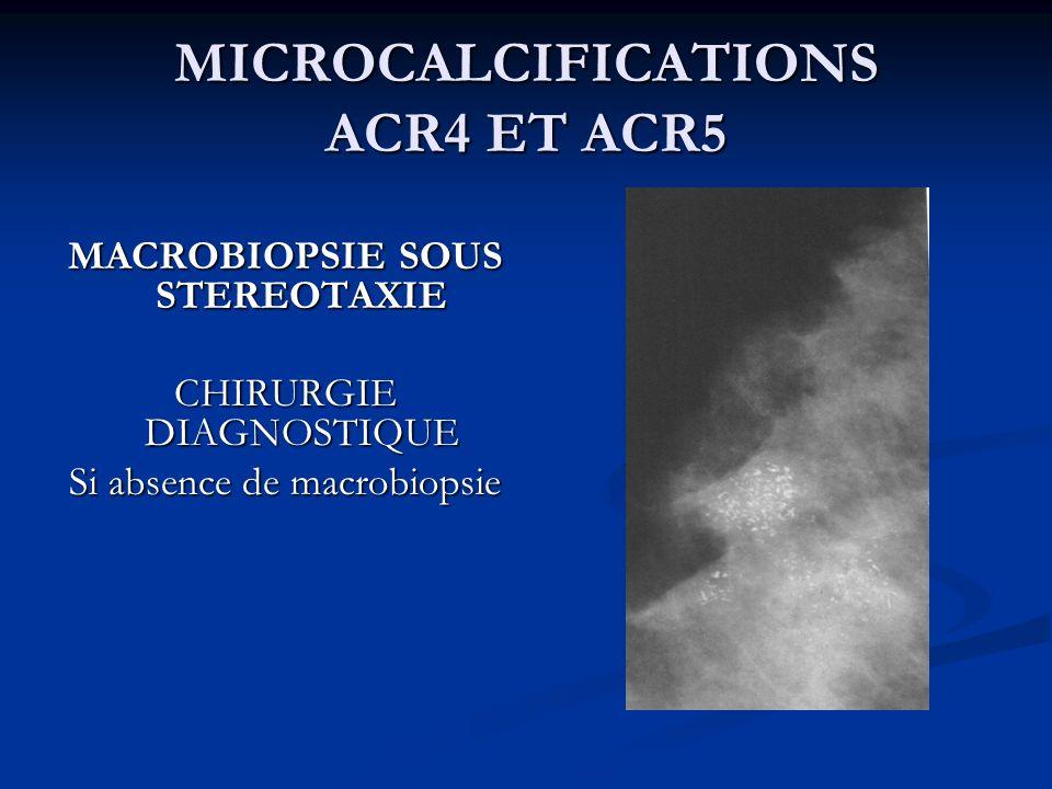 MICROCALCIFICATIONS ACR4 ET ACR5 MACROBIOPSIE SOUS STEREOTAXIE CHIRURGIE DIAGNOSTIQUE Si absence de macrobiopsie