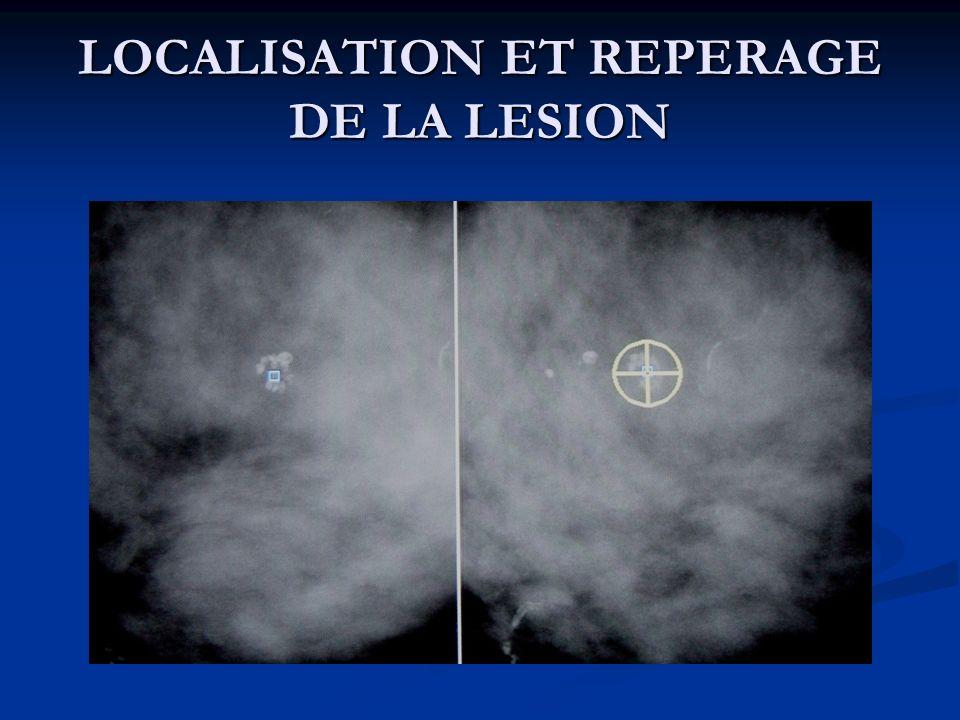 LOCALISATION ET REPERAGE DE LA LESION