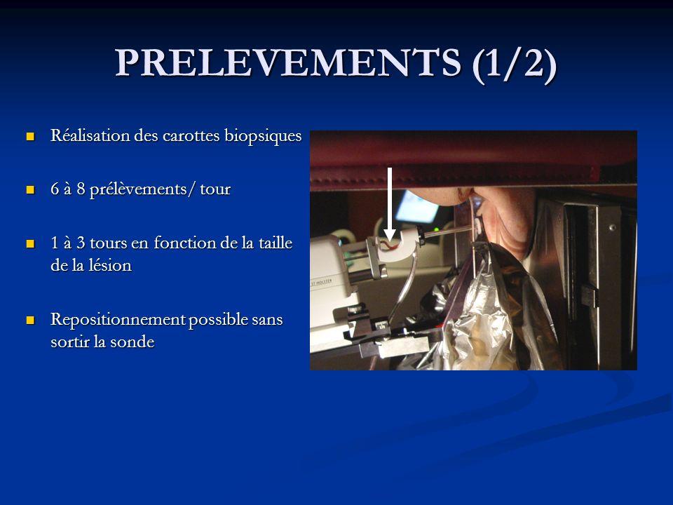 PRELEVEMENTS (1/2) Réalisation des carottes biopsiques Réalisation des carottes biopsiques 6 à 8 prélèvements/ tour 6 à 8 prélèvements/ tour 1 à 3 tou