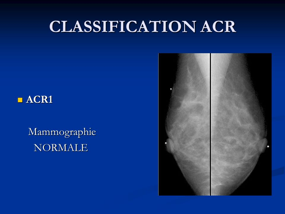 CLASSIFICATION ACR ACR1 ACR1 Mammographie Mammographie NORMALE NORMALE