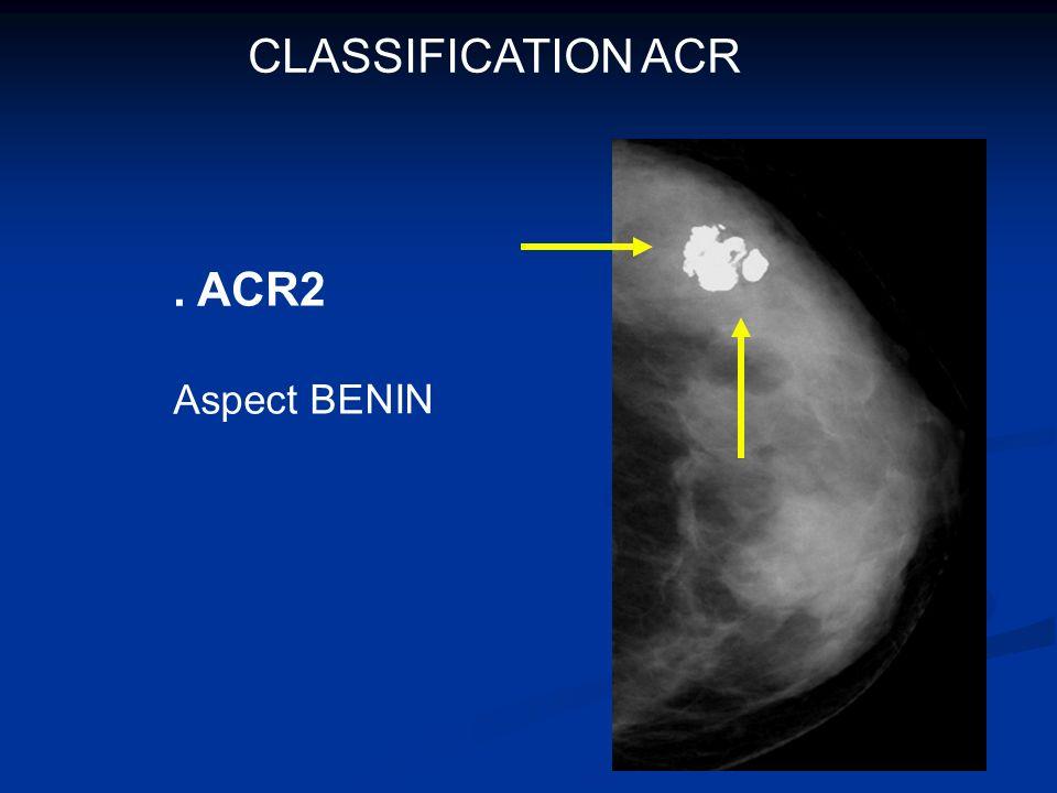 .ACR3 Probablement Bénin VPP <5% de K RiSQUE DE SUR diagnostic si examens à visée histologique SUIVI RAPPROCHE 4à 6 mois
