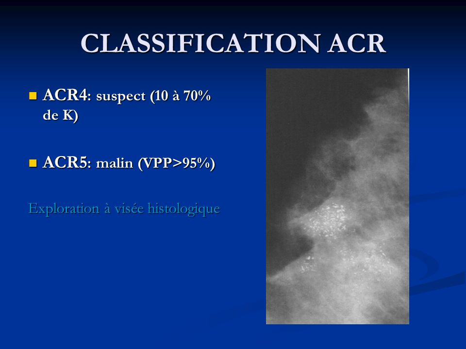 CLASSIFICATION ACR ACR4 : suspect (10 à 70% de K) ACR4 : suspect (10 à 70% de K) ACR5 : malin (VPP>95%) ACR5 : malin (VPP>95%) Exploration à visée his