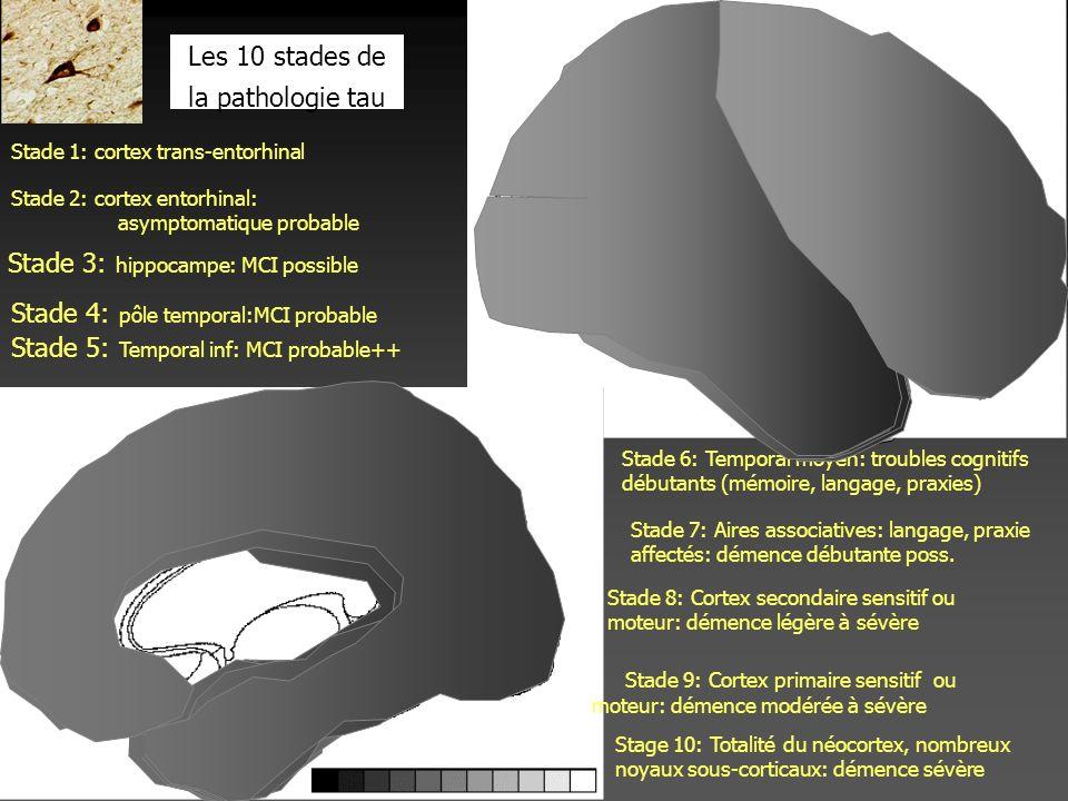 Stade 1: cortex trans-entorhinal Stade 2: cortex entorhinal: asymptomatique probable Stade 3: hippocampe: MCI possible Stade 4: pôle temporal:MCI prob