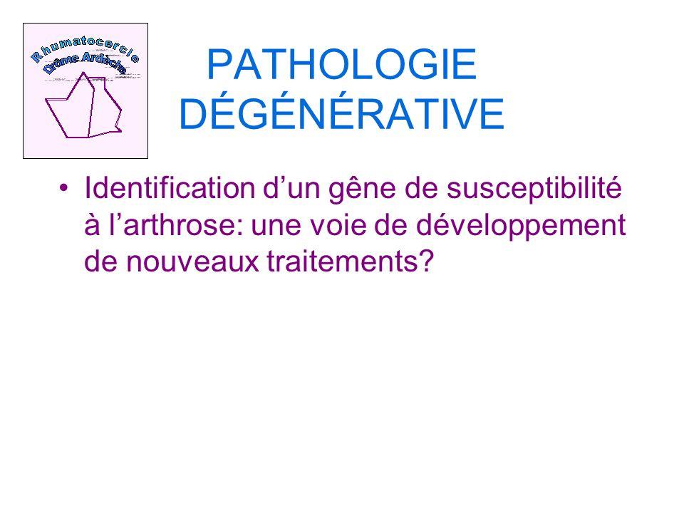 PATHOLOGIE DÉGÉNÉRATIVE Identification dun gêne de susceptibilité à larthrose: une voie de développement de nouveaux traitements