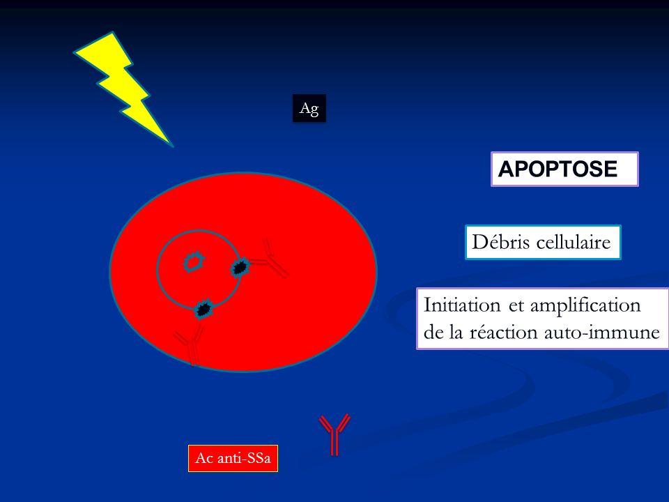 Ag Ac anti-SSa APOPTOSE Initiation et amplification de la réaction auto-immune Débris cellulaire