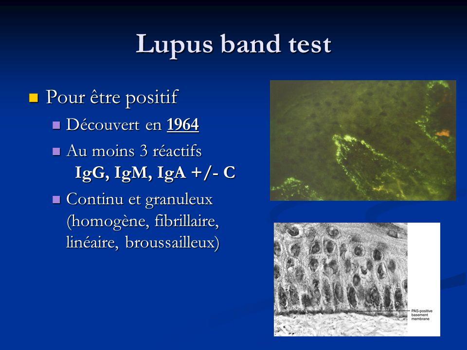 Lupus band test Pour être positif Pour être positif Découvert en 1964 Découvert en 1964 Au moins 3 réactifs IgG, IgM, IgA +/- C Au moins 3 réactifs Ig