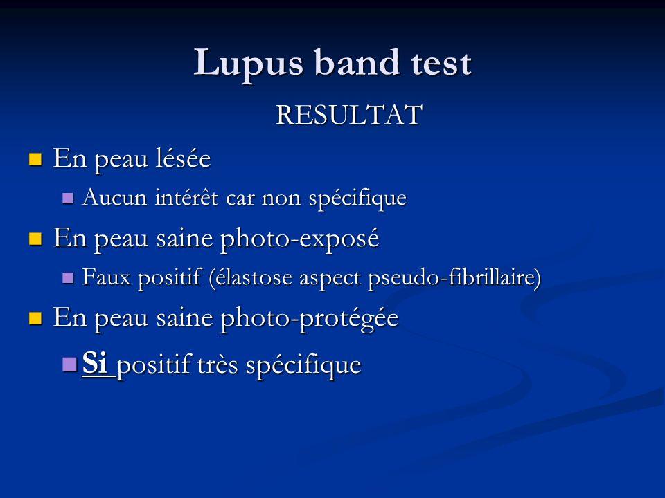Lupus band test RESULTAT En peau lésée En peau lésée Aucun intérêt car non spécifique Aucun intérêt car non spécifique En peau saine photo-exposé En p
