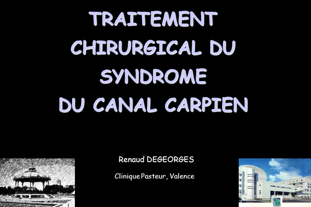 Renaud DEGEORGES Clinique Pasteur, Valence TRAITEMENT CHIRURGICAL DU SYNDROME DU CANAL CARPIEN