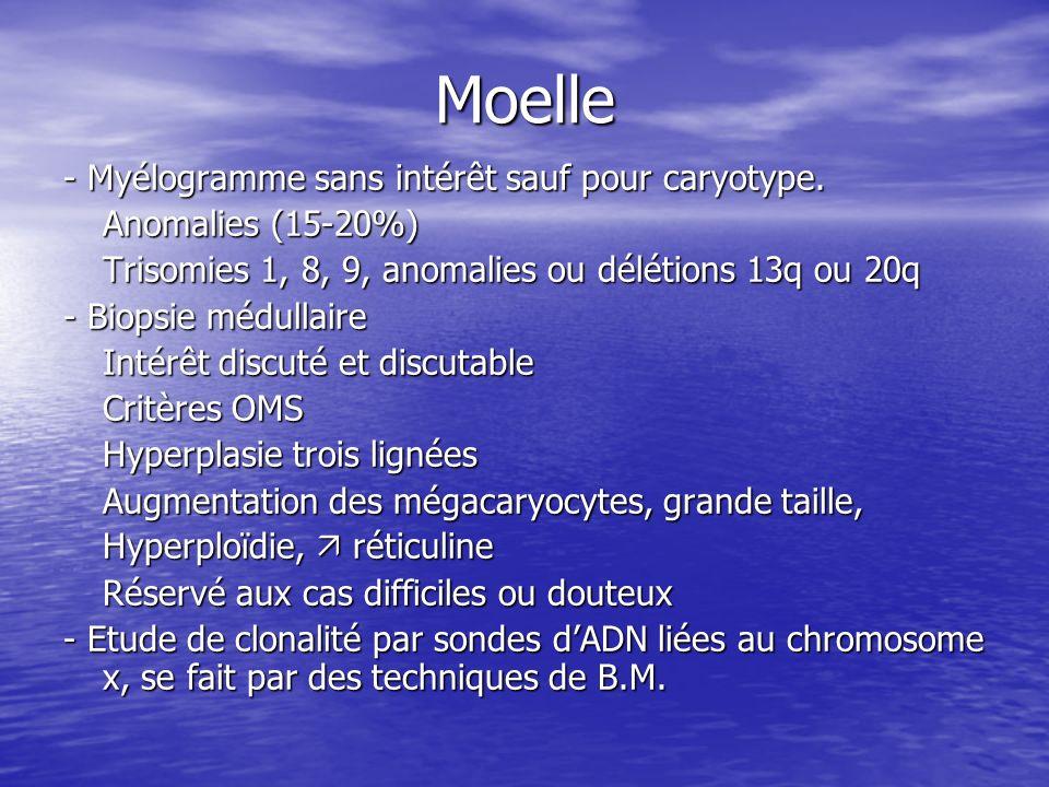 Moelle - Myélogramme sans intérêt sauf pour caryotype. Anomalies (15-20%) Trisomies 1, 8, 9, anomalies ou délétions 13q ou 20q - Biopsie médullaire In