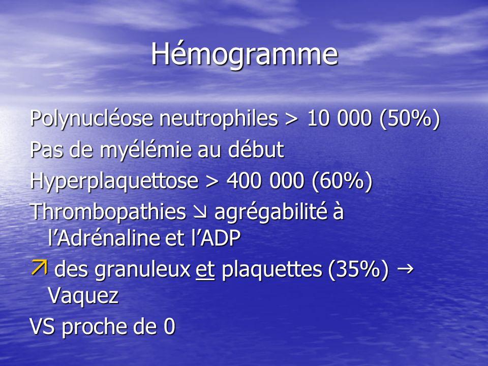 Hémogramme Polynucléose neutrophiles > 10 000 (50%) Pas de myélémie au début Hyperplaquettose > 400 000 (60%) Thrombopathies agrégabilité à lAdrénalin