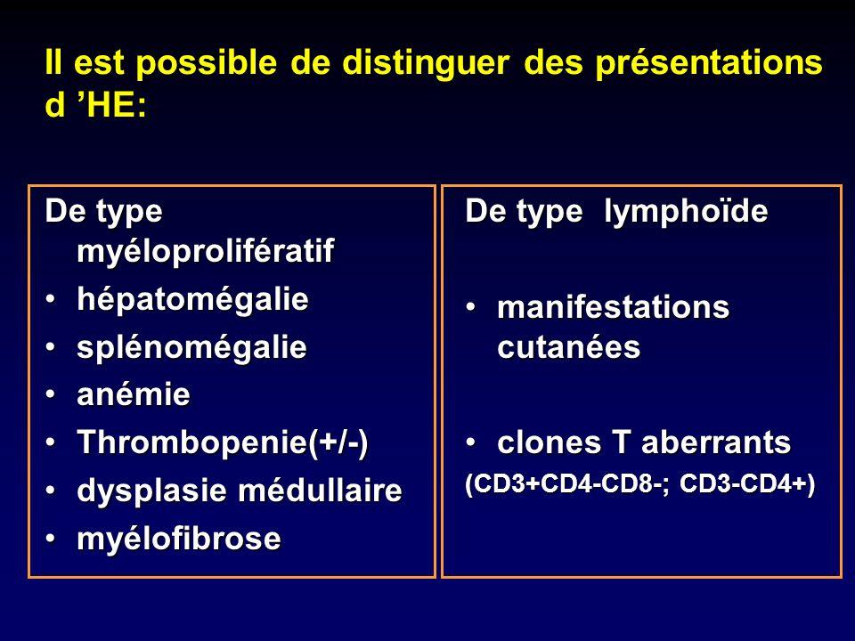 De type myéloprolifératif hépatomégaliehépatomégalie splénomégaliesplénomégalie anémieanémie Thrombopenie(+/-)Thrombopenie(+/-) dysplasie médullairedy