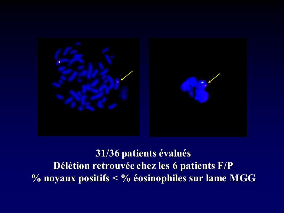 31/36 patients évalués Délétion retrouvée chez les 6 patients F/P % noyaux positifs < % éosinophiles sur lame MGG