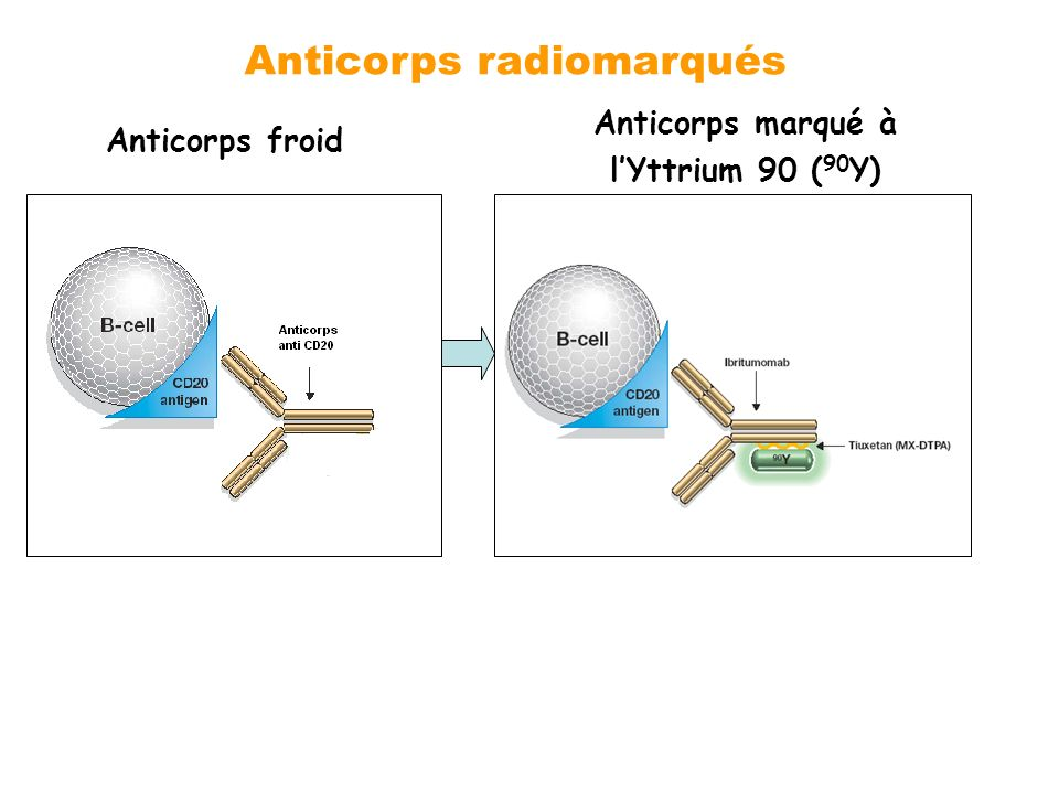 Anticorps froid Anticorps marqué à lYttrium 90 ( 90 Y) Anticorps radiomarqués