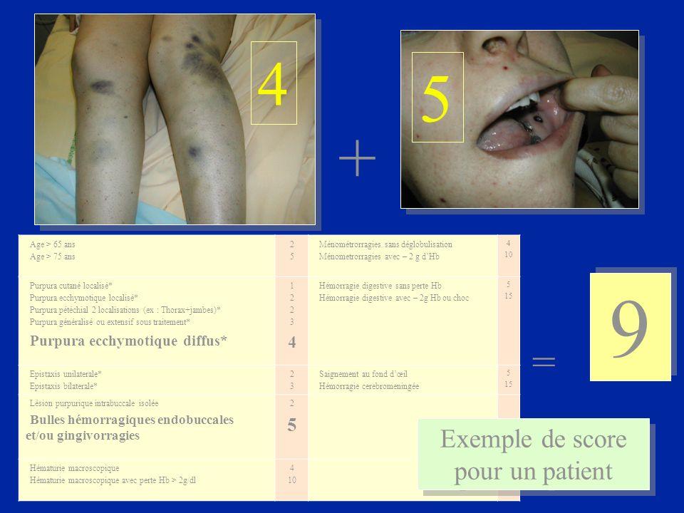 + 9 9 = Age > 65 ans Age > 75 ans 2525 Ménométrorragies sans déglobulisation Ménometrorragies avec – 2 g dHb 4 10 Purpura cutané localisé* Purpura ecc