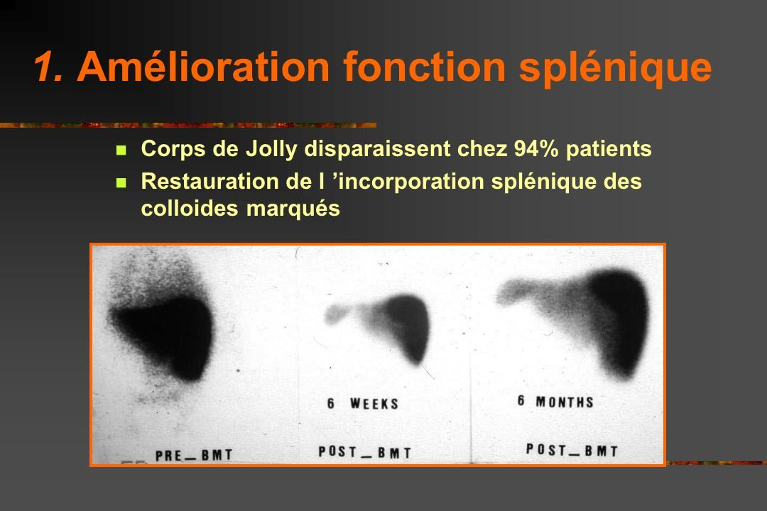 Chimérisme selon ATG ou non Avec SAL - Plus de chim mixte - Mais + stable - 2 cas de Chim 11%D - 9g Hb - 50% HbS (donneur AS)