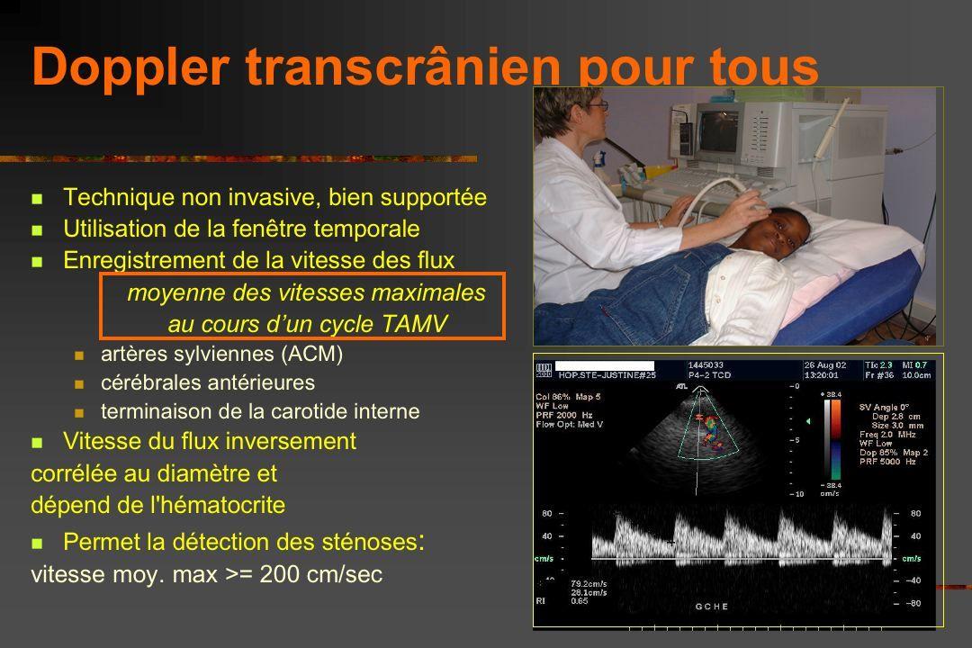 Risque d AVC clinique en l absence de prévention par DTC Risque d'AVC clinique 17 % à 20 ans Powars 1978 11% à 20 ans Ohene Frempong 1998 Quinn 2004 A