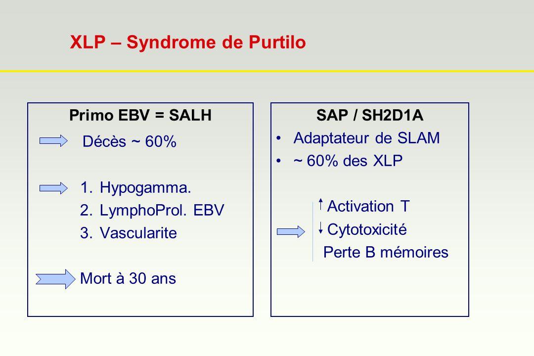XLP – Syndrome de Purtilo Primo EBV = SALH Décès ~ 60% 1.Hypogamma. 2.LymphoProl. EBV 3.Vascularite Mort à 30 ans SAP / SH2D1A Adaptateur de SLAM ~ 60